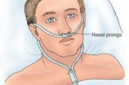 Canula Nasal adulto y pediatrica
