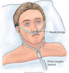 Canula Nasal adulto y pediatrica